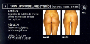 lipomodelage-ginoide