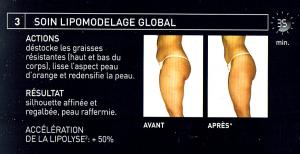 lipomodelage-global